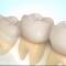 جراحی دندان عقل نیمه نهفته