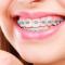 ویدئوی نحوه ارتودنسی کردن دندان