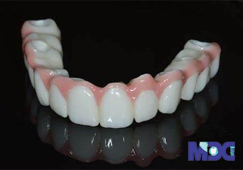بریج دندانی آماده شده برای ایمپلنت فول ماوس
