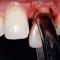 فیلم آموزشی نحوه کشیدن ریشه دندان