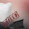 دانلود فیلم شکست ایمپلنت دندان در طرح درمان دیجیتال