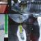 ویدئو روش جدید ایمپلنت دندان با تکنولوژی navident
