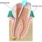 ویدئو درمان ریشه دندان در دندانپزشکی