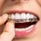 فیلم ارتودنسی شفاف دندان و توضیحاتی در باره آن
