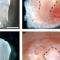 کاشت دندان با سلول های بنیادی | کاشت دندان