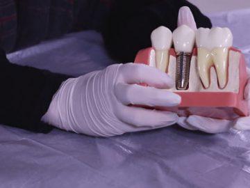 Abutment-dental-min