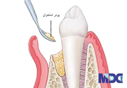 بازسازی استخوان با پودر استخوان