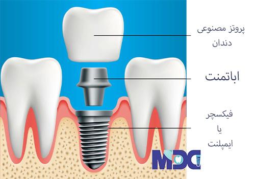 درد در ایمپلنت دندان