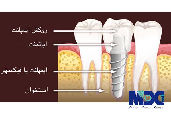 معرفی کامل اجزای ایمپلنت دندان