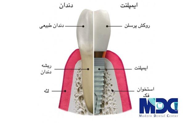 اجزای ایمپلنت دندان-کلینیک دندان پزشک مدرن