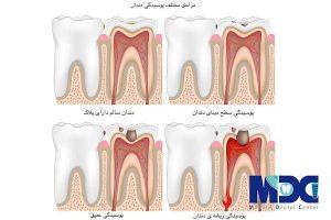 مراحل مختلف پوسیدگی دندان