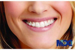 مزیت های ارتودنسی سرامیکی همرنگ دندان