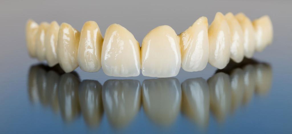 قیمت روکش دندان زیرکونیا در دندانپزشکی
