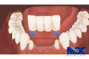 بریج دندان بدون تراش در کلینیک دندانپزشکی مدرن