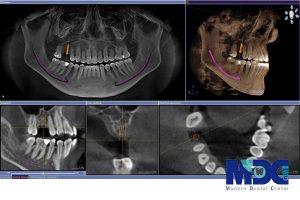 رادیوگرافی دندان یا CBCT