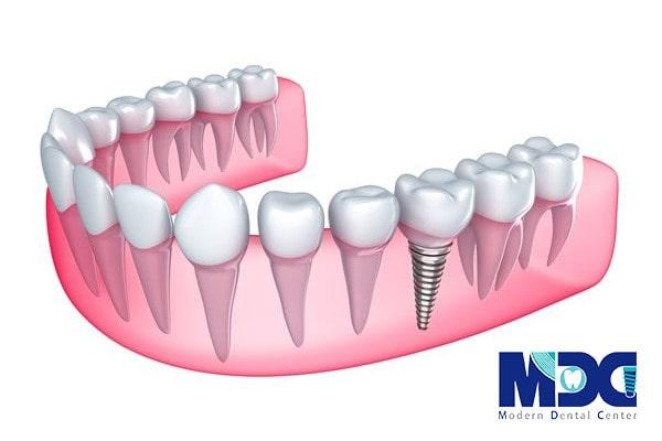 کاشت دندان با ایمپلنت