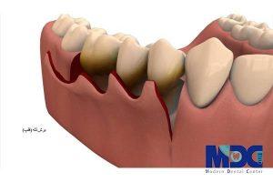 برش لثه جهت کاشت ایمپلنت دندان