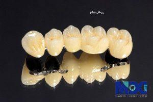 روکش pfm دندان