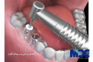 کاشت ایمپلنت دندان با گاید جراحی