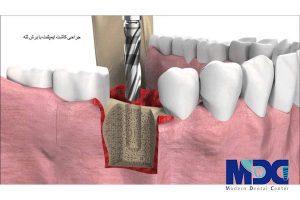 کاشت ایمپلنت دندان با برش لثه