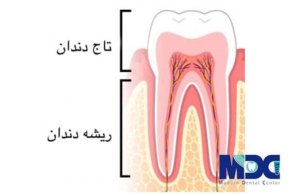 بررسی تاج و ریشه ی دندان