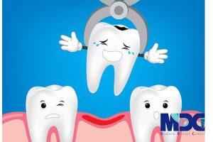 کشیدن دندان آسیب دیده