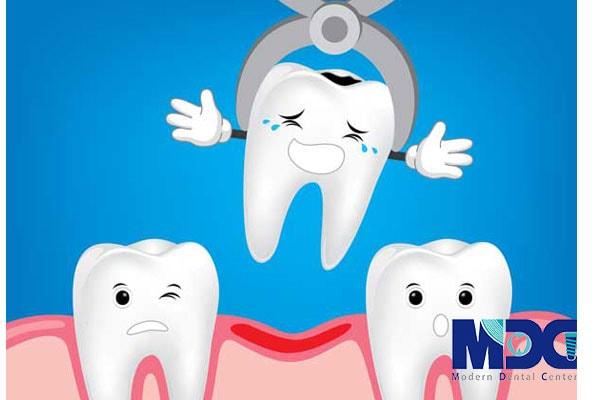 دلایل کشیدن دندان
