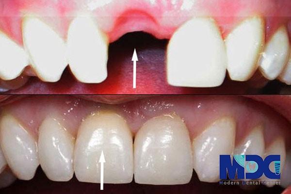 جدیدترین روش کاشت دندان ثابت