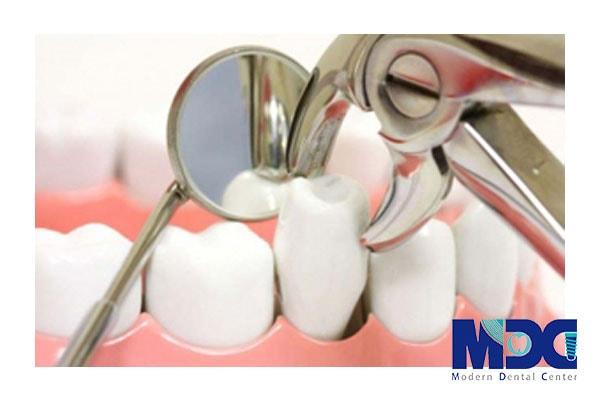 نحوه کشیدن دندان