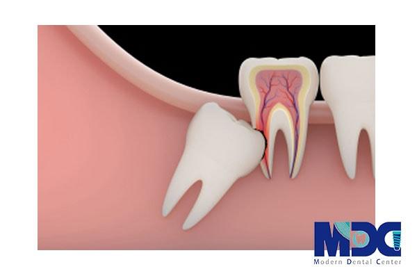 تصویری از دندان عقل نهفته