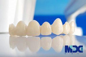 روکش زیرکونیا دندان