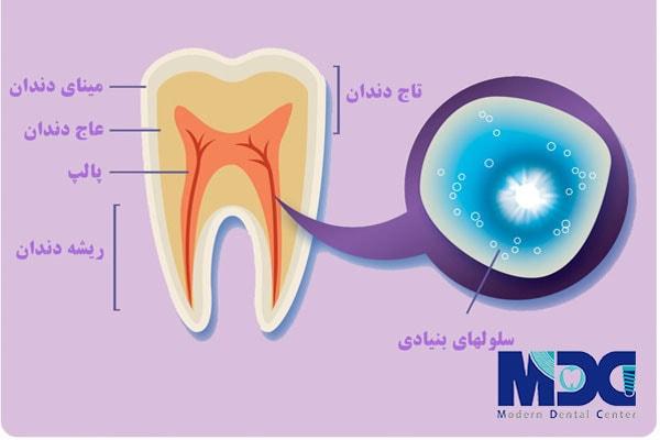 کاشت دندان با سلولهای بنیادی