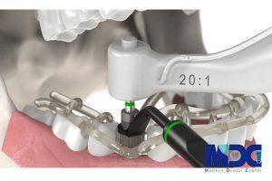 کاشت ایمپلنت بدون جراحی با نویگیشن
