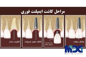 کاشت ایمپلنت یک روزه با روکش دندان