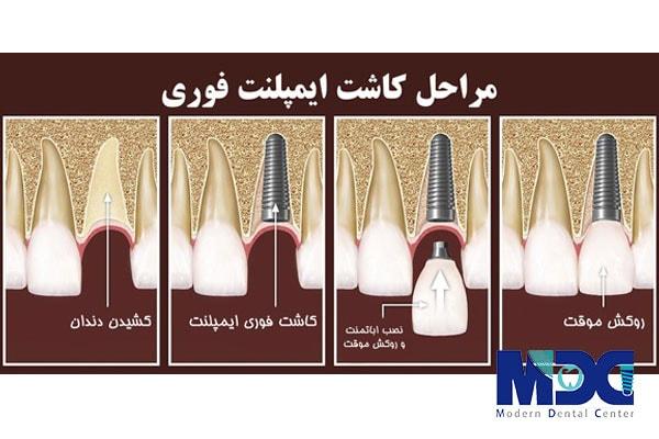 مراحل کاشت ایمپلنت فوری و کاشت دندان یک روزه