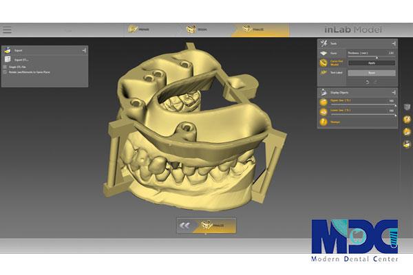 کاشت ایمپلنت با CAD/CAM-کلینیک دندان پزشکی مدرن