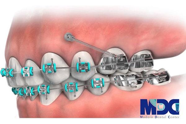 ارتودنسی فک و دندان
