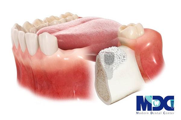 بازسازی استخوان فک جهت کاشت ایمپلنت