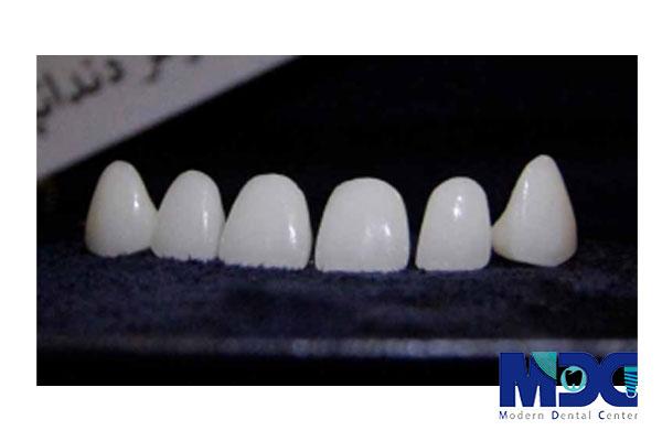 روکش دندان زیرکونیا-کلینیک دندان پزشکی مدرن