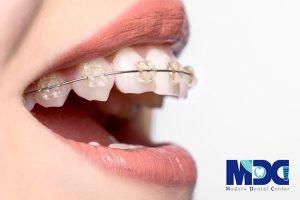 ارتودنسی فک و دندان با تکنولوژی جدید