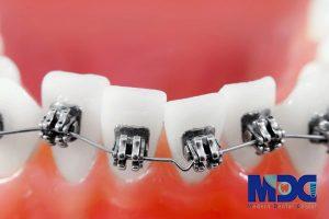 ارتودنسی درمان مشکلات فک و دندان
