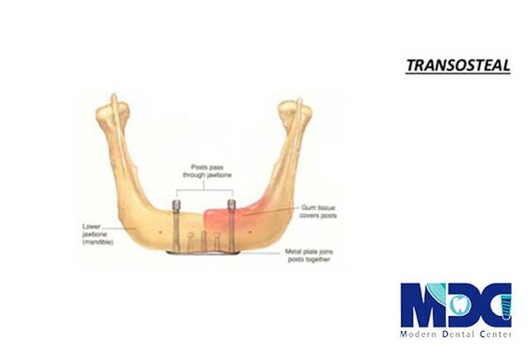 ایمپلنت transosteal