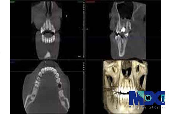 تکنیک تصویربرداری قبل ایمپلنت-کلینیک دندان پزشکی مدرن