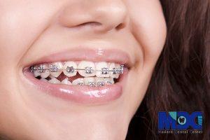 روش های مختلف درمان ارتودنسی در دندانپزشکی