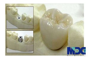 تکنولوژی پرینتر سه بعدی دندان