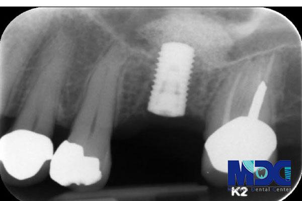 اقدامات تشخیصی قبل از ایمپلنت-کلینیک دندان پزشکی مدرن