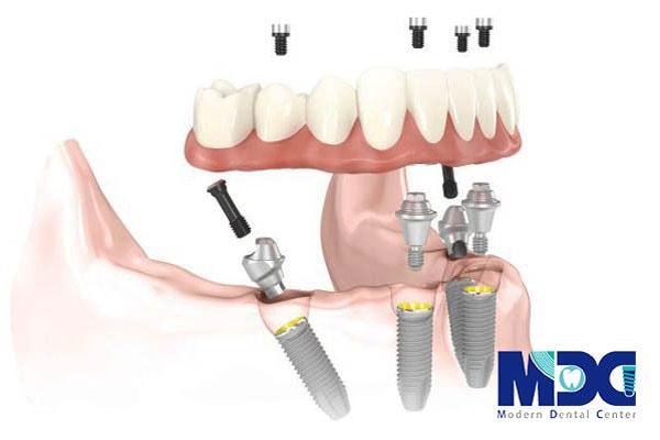کاشت ایمپلنت به روش all on 4 و دندان مصنوعی بر پایه ایمپلنت