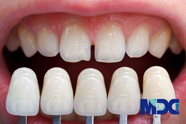 ونیرهای کامپوزیتی-کلینیک دندان پزشکی مدرن