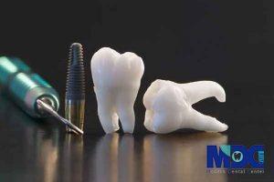 تکنولوژی پیشرفته CBCT در کاشت ایمپلنت دندان