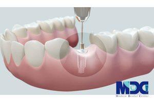 نشانه های شکست ایمپلنت دندان و درمان آن